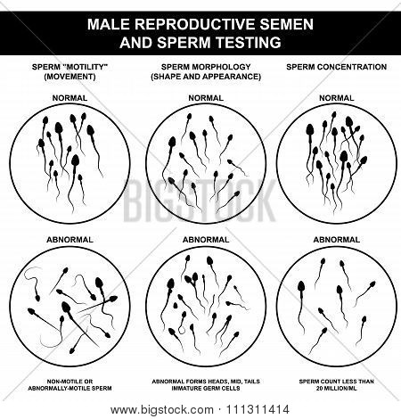 normal and abnormal sperm