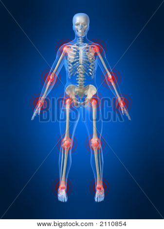 Joints Inflammation