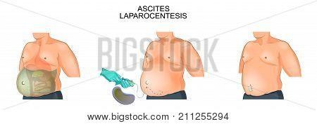 vector illustration of a man suffering from ascites. Laparocentesis