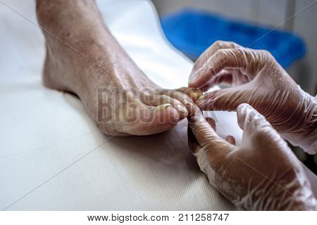podiatry doctor curing an elderly patient feet