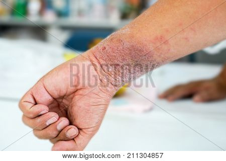Eczema presents on the hand and palms