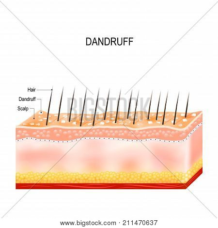 Dandruff. seborrheic dermatitis can occur due to dry skin bacteria and fungus on the scalp. It causes formation of dry skin flakes on the scalp. Layers of the human skin