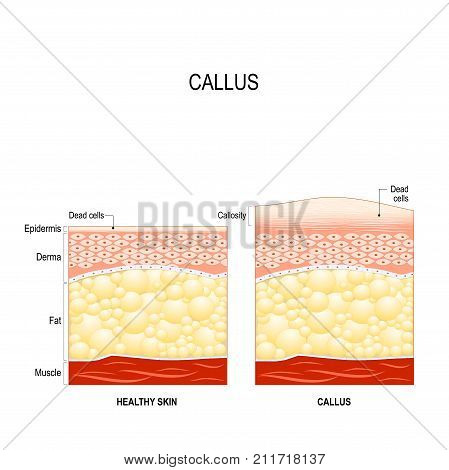 Callus is a toughened area of skin with relatively thick layer of the dead cells. callosity. The difference between healthy skin and skin with callus. skincare