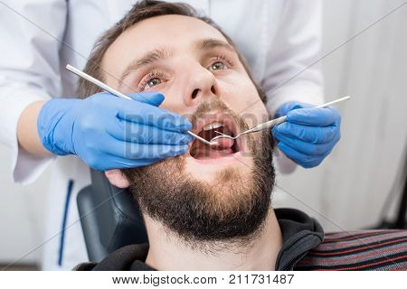 Close Up Of Bearded Man Having Dental Check Up In Dental Clinic. Dentist Examining A Patient's Teeth