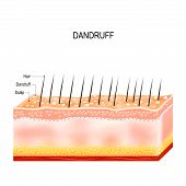 Dandruff. seborrheic dermatitis can occur due to dry skin bacteria and fungus on the scalp. It causes formation of dry skin flakes on the scalp. Layers of the human skin poster