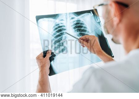 Male Doctor Examining The Patient Chest X-ray Film Lungs Scan At Radiology Department In Hospital.co