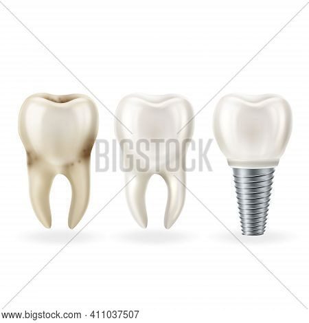 Realistic Healthy Tooth,tooth With Caries And Dental Implant With Screw. Vector Illustratio