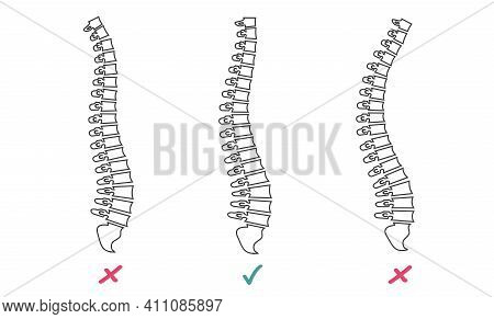 Three Spines On The Screen. Vector Illustration Doctor Studying Problems Spine Patient. Virtual Real