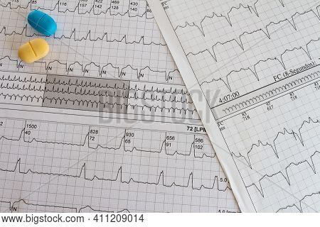 Electrocardiogram With Cardiac Arrhythmia. Medications For Arrhythmia Treatments.