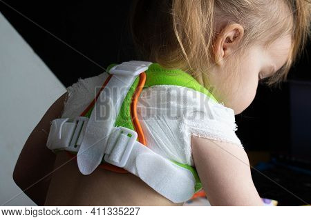 Little Girl Child With Broken Collarbone Or With Poor Posture In Orthopedic Corset Reclinator Ring D