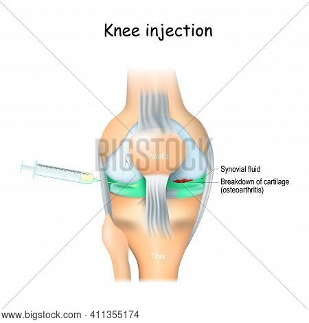 Knee Injections. Treatment Of Joint Pain. Knee And Syringe With Corticosteroid, Or Hyaluronic Acid.