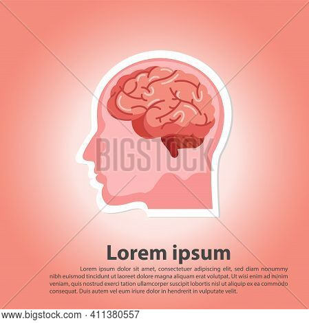 Human Brain Stroke Illustration.