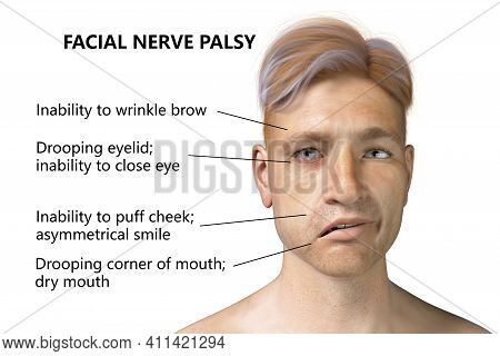 Facial Nerve Paralysis, Bell's Palsy, 3d Illustration Showing Male With One-sided Facial Nerve Paral