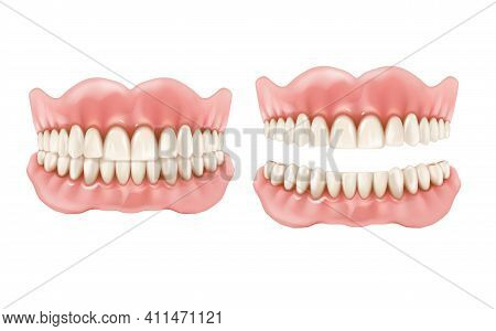 Denture, Dental Teeth And Jaw, Realistic Prosthesis, Vector Tooth And Mouth. Removable Denture Mocku