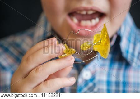 The Boy Puts A Frenkel Device In His Mouth To Correct The Bite. Medicine, Orthodontics. Correction O