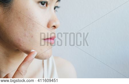 Portrait Of Young Asian Woman Having Acne Problem. Conceptual Of Woman Trying To Applying Acne Cream