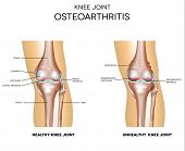 Osteoarthritis and normal knee joint anatomy isolated on white poster