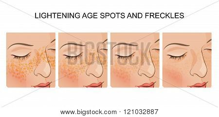illustration of the face of a young woman with freckles, Brightener poster