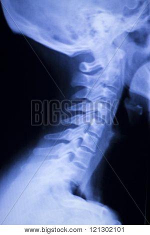 Skull Neck Spine Shoulders Xray Scan