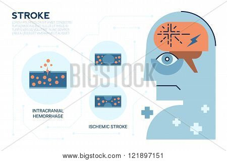 Stroke Brain Disease
