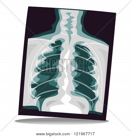 Stock Vector Illustration of an X-ray Film