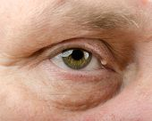 Epidermal cyst on right upper eyelid of middle aged man. Close up picture poster