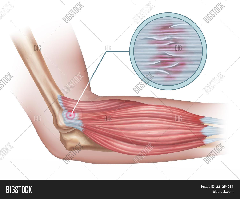 Tennis Elbow Diagram Image Photo Free Trial Bigstock
