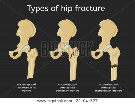 Types Of Hip Fracture. Non-displaced Intracapsular, Extracapsular Trochanteric And Subtrochanteric F