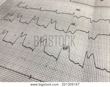 Close up ST elevation in leadI ll,lll on ECG paper