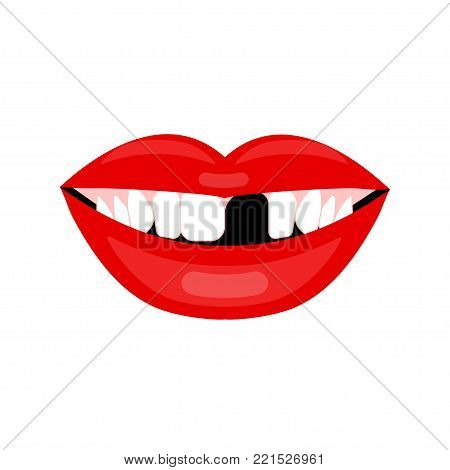 Female mouth with lost tooth. Vector illustration of prosthetics.