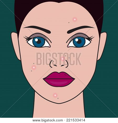 Acne on face of girl. Treatment of acne, inflammations, skin diseases. Skincare. Vector illustration