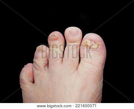Toes of a male's left foot with a fungal infection on the big toe. Isolated with a black background.