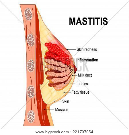 Mastitis. Cross-section of the mammary gland with inflammation of the breast (abscess formation). Women's Health. Human anatomy. Vector diagram for medical use