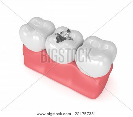 3d render of teeth with dental amalgam filling in gums over white background