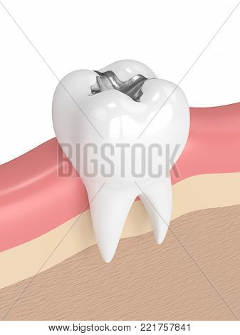 3d render of tooth with dental amalgam filling in gums