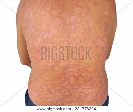 Tinea corporis , Fungal infection or Mycosis, skin diease