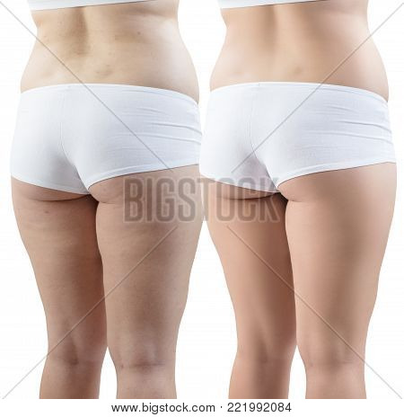 Fatty female buttocks in white underwear before and after retouch isolated on white background. poster