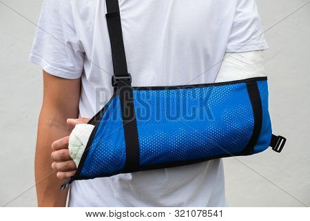 Man With Broken Arm Wrapped Medical Cast Plaster And Blue Bandage. Fiberglass Cast Covering The Wris