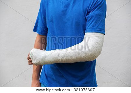 Man With Broken Arm Wrapped Medical Cast Plaster. Fiberglass Cast Covering The Wrist, Arm, Elbow Aft