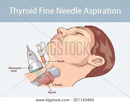 Vector Illustration Of A Fine Needle Aspiration Of Thyroid Nodules