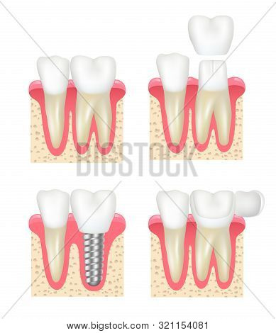 Dental Crown. Tooth Veneer Implants Healthy Cavity Stomatology Dentist Vector Collection. Medical Im