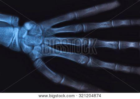 Medical X-ray Image Of Human Hand. Radiology Diagnostic Of Skeleton Bones.