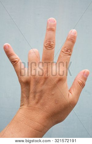 Trigger Finger lock on ring finger of woman's back left hand, Suffering from pain, On Blue-grey colour background,  Close up & Macro shot, Office syndrome, Health care concept poster