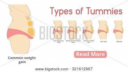 Types Of Female Tummies Banner. Tummy Tuck Surgery Or Abdominoplasty Vector Illustration. Post-pregn