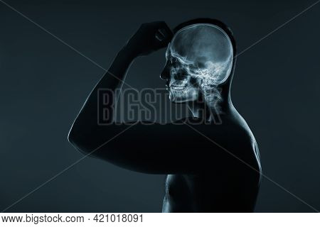 X-ray Of A Man's Head. Medical Examination Of Head Injuries.