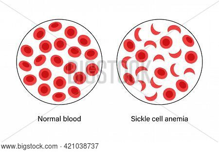 Comparison Of Normal Blood And Sickle Cells Anemia. Human Blood Cells Structure Under Microscope. Mi