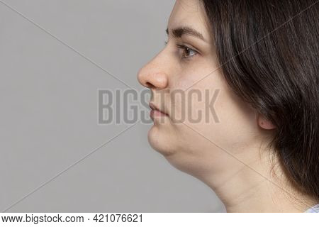 The Woman Has A Double Chin. Treatment, Chin Reshaping, Fat Removal, Lifting. Place For Text Copy Sp