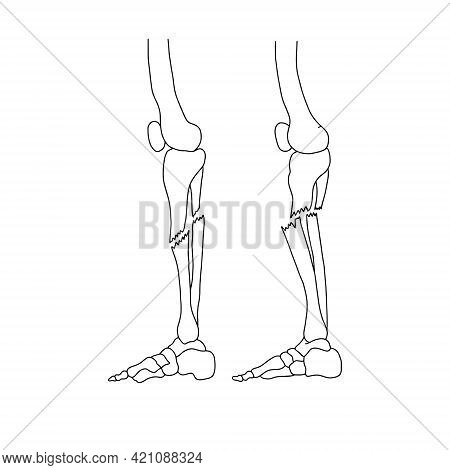 Human Leg Fracture: Closed And Open. Types Of Bone Fractures.