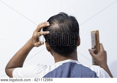 A Middle Aged Indian Man Showing His Hair Fall Back Facing With Comb In Hand On White Background
