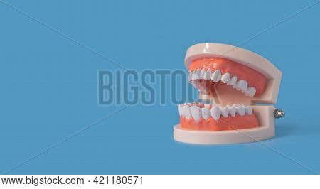 Plastic Human Teeth Model Is Placed On A Blue Background. Dental Examination Concept. Regular Oral H
